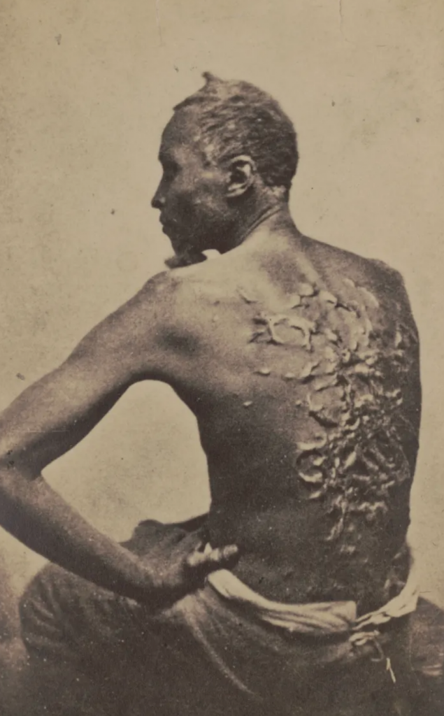 Historical photo of an African American slave's wounds on his back.